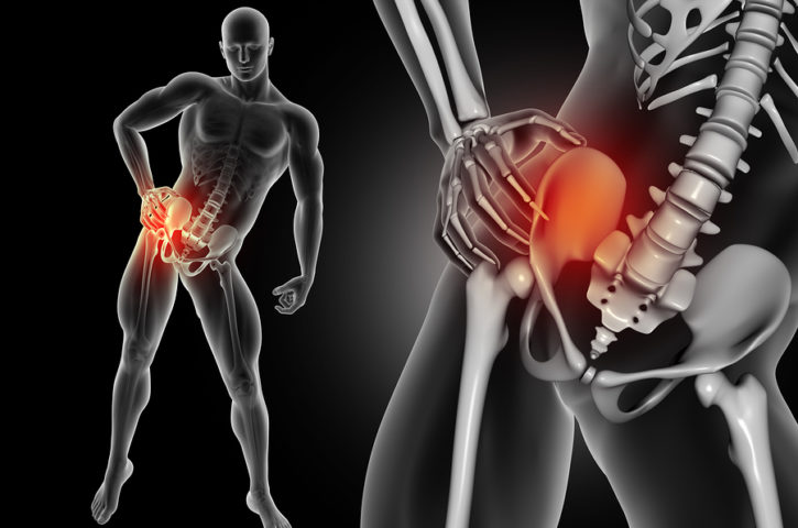 Does Chronic Hip Pain Require Hip Replacement Surgery?