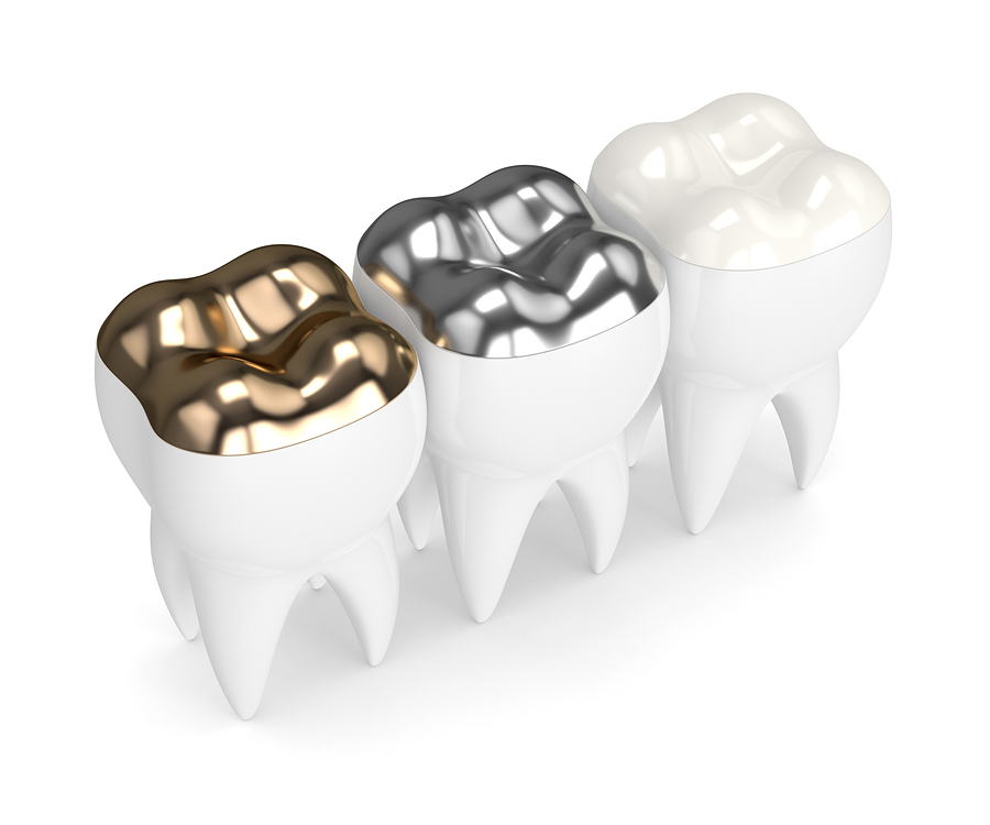 Metal-free dentistry